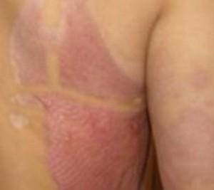 Thuốc tẩy trắng da và mối nguy hiểm nên tránh