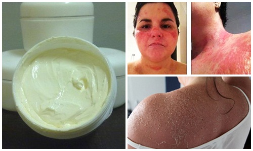 Nguy hiểm tiền ẩn từ các loại kem trộn làm trắng da toàn thân