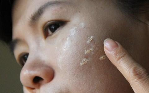 Kem trắng da cấp tốc có thể phá hủy làn da của bạn