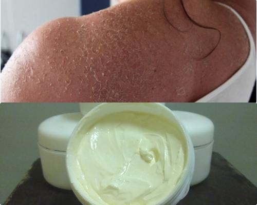 Các loại kem tẩy trắng da mặt vô cùng nguy hại cho da
