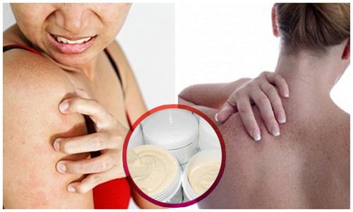 Kem trộn làm trắng da không rõ nguồn gốc gây tổn thương da