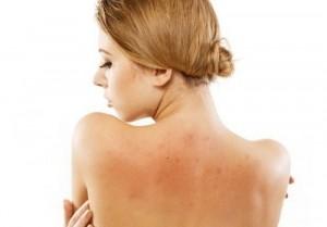 Có nên tắm trắng toàn thân khi đang điều trị mụn không?